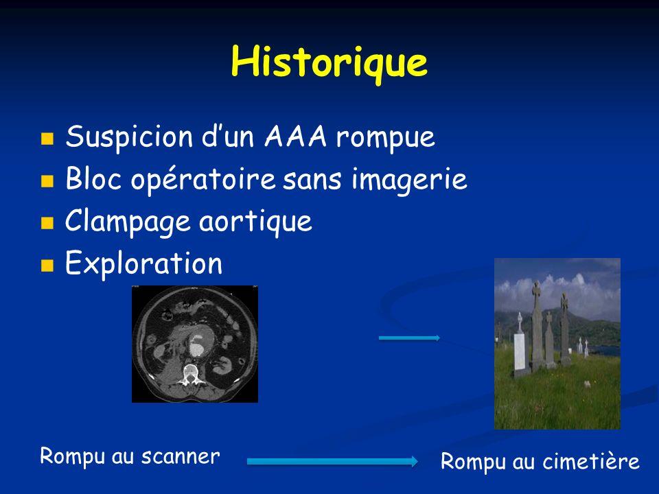 Historique Suspicion d'un AAA rompue Bloc opératoire sans imagerie