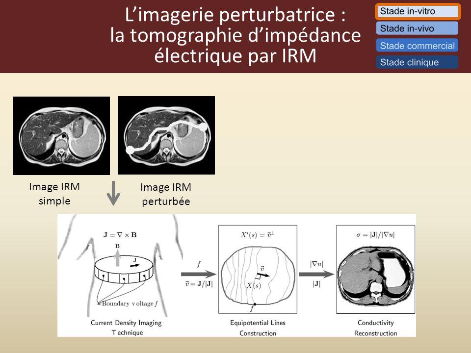 L'imagerie perturbatrice : la tomographie d'impédance