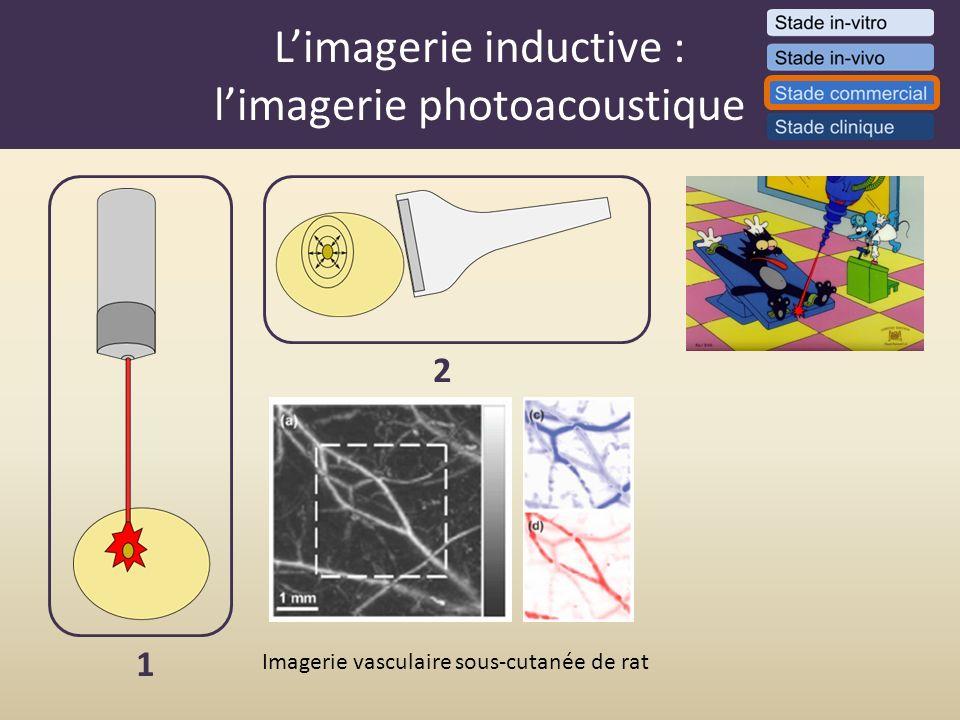 L'imagerie inductive : l'imagerie photoacoustique