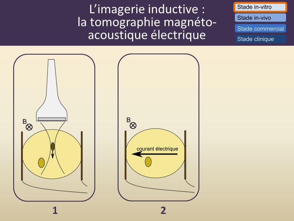L'imagerie inductive : la tomographie magnéto- acoustique électrique