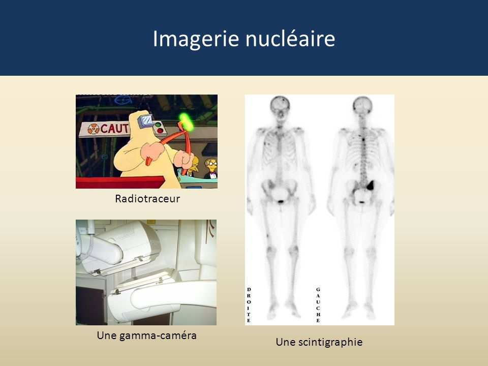 Imagerie nucléaire Radiotraceur Une gamma-caméra Une scintigraphie