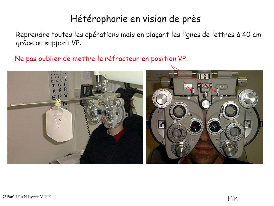 Hétérophorie en vision de près
