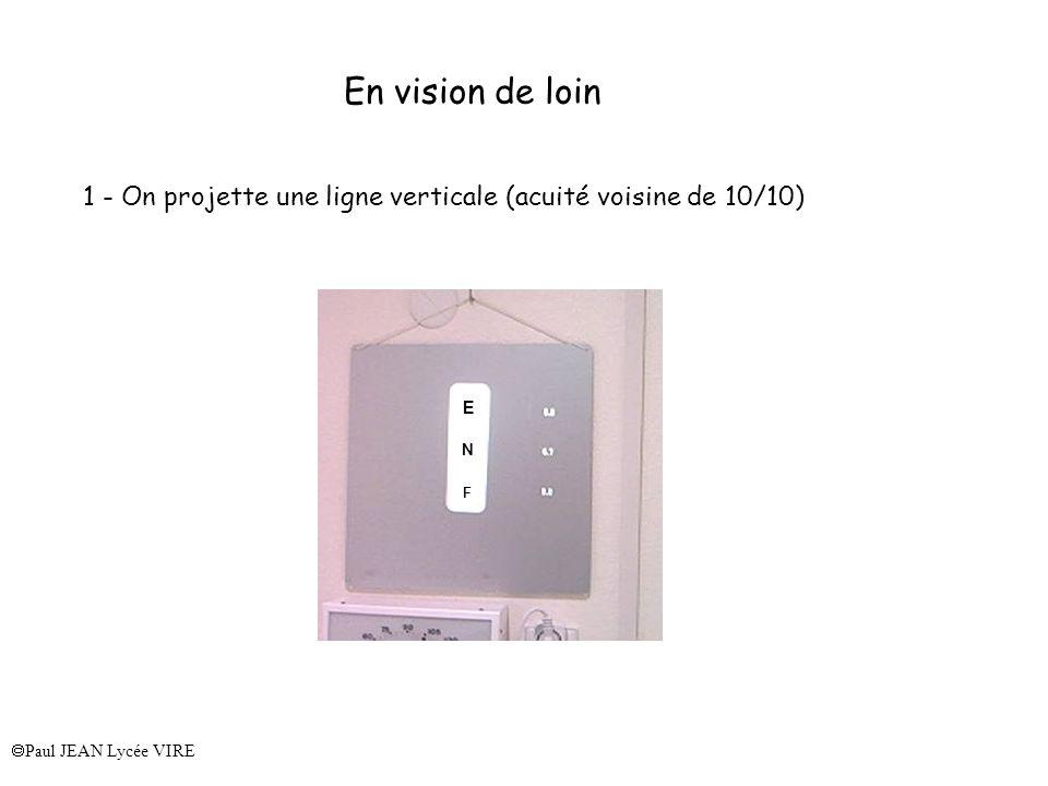 En vision de loin 1 - On projette une ligne verticale (acuité voisine de 10/10) E.
