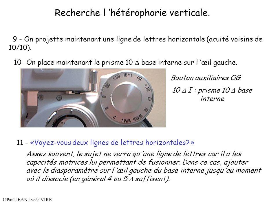 Recherche l 'hétérophorie verticale.
