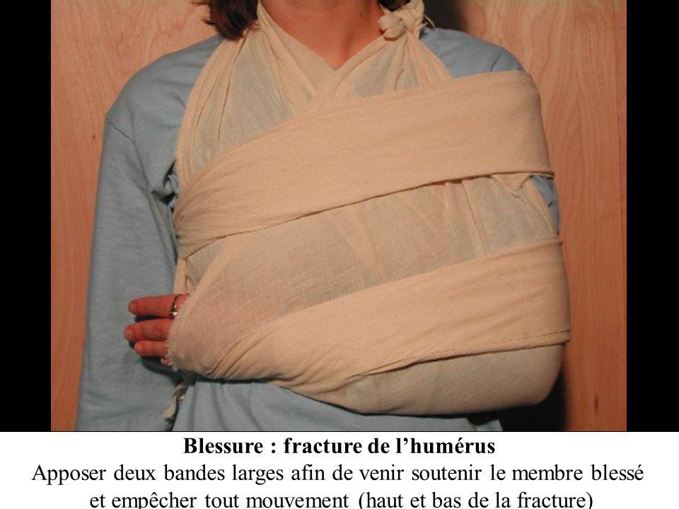 Blessure : fracture de l'humérus