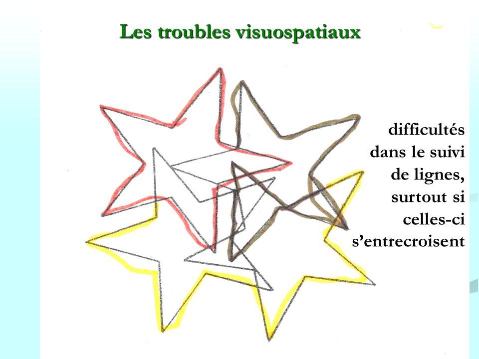 Les troubles visuospatiaux
