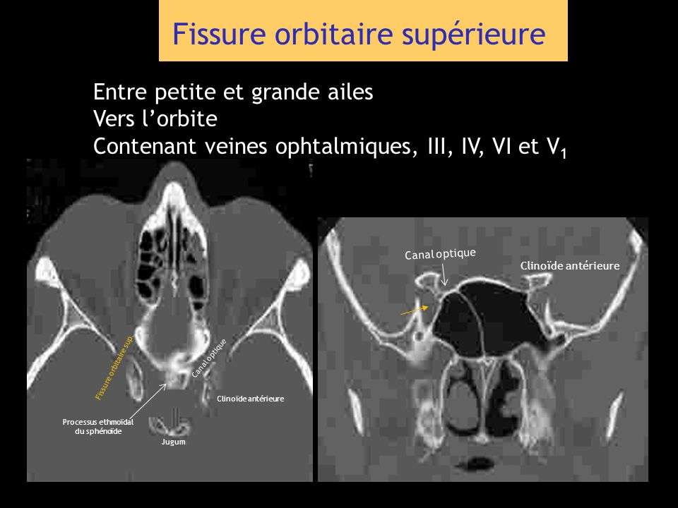 Fissure orbitaire supérieure