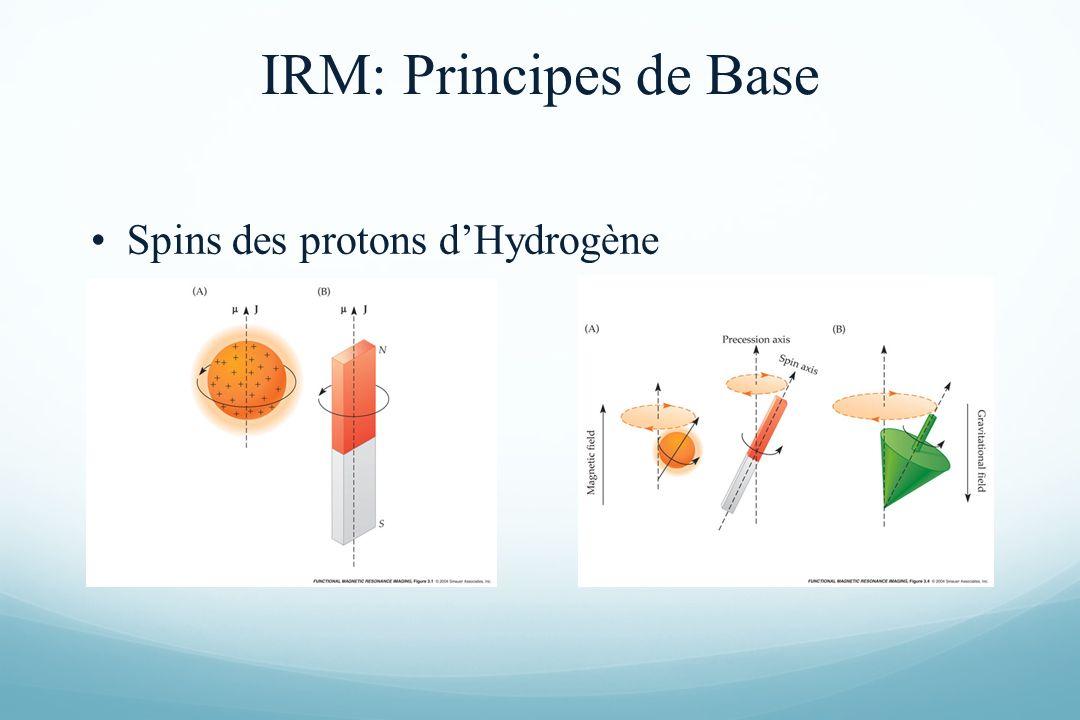 IRM: Principes de Base Spins des protons d'Hydrogène