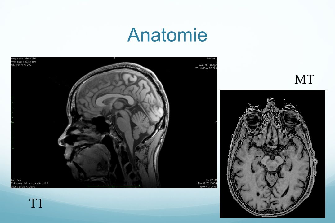 Anatomie MT T1