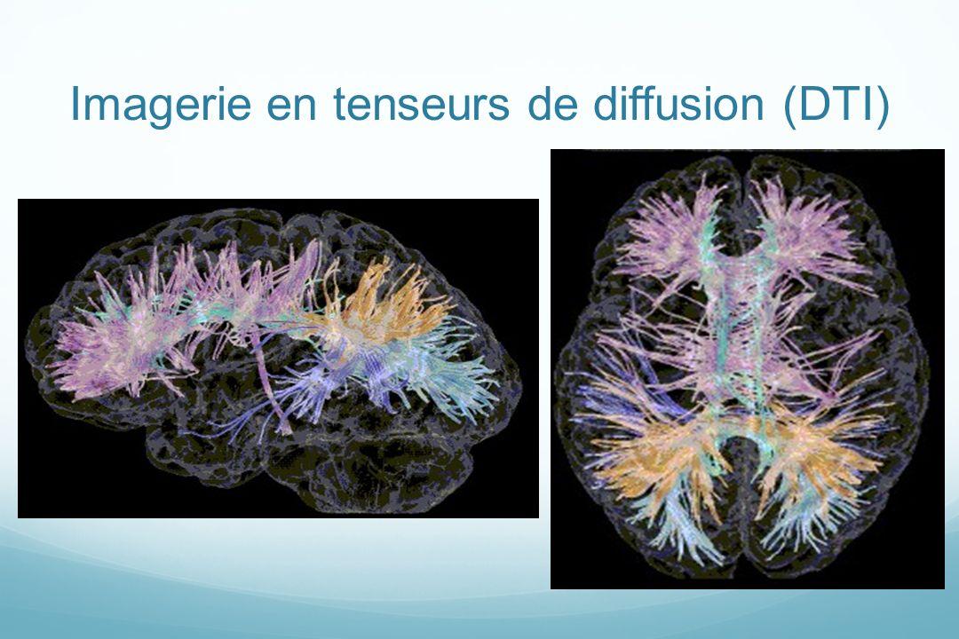 Imagerie en tenseurs de diffusion (DTI)