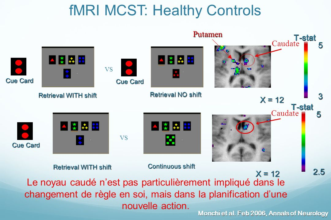 fMRI MCST: Healthy Controls