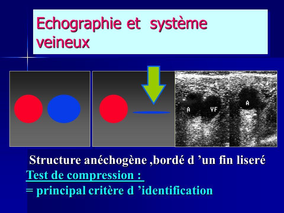 Echographie et système veineux
