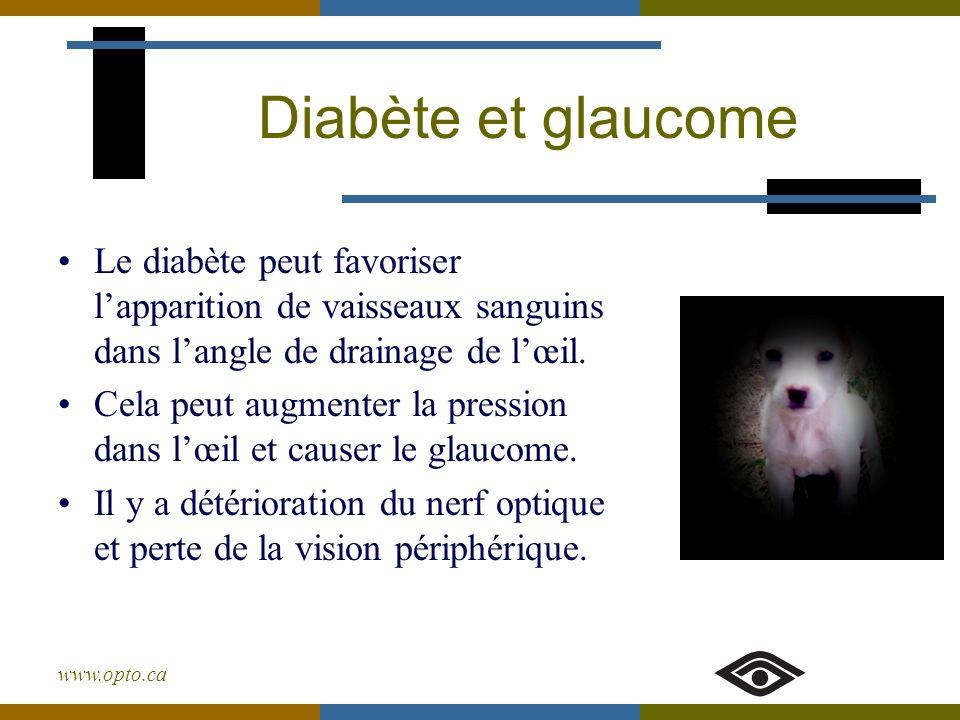 Diabète et glaucome Le diabète peut favoriser l'apparition de vaisseaux sanguins dans l'angle de drainage de l'œil.