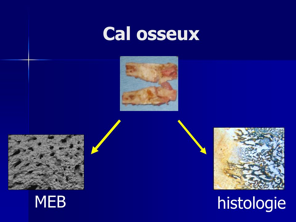 Cal osseux MEB histologie