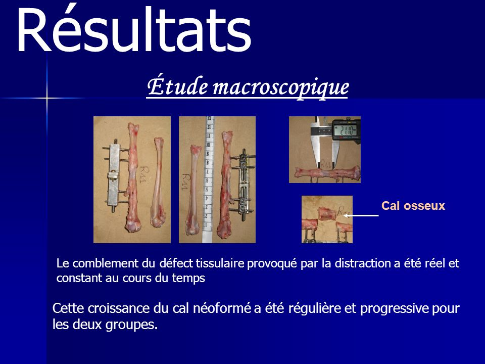 Résultats Étude macroscopique