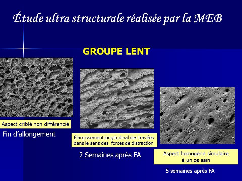 Étude ultra structurale réalisée par la MEB
