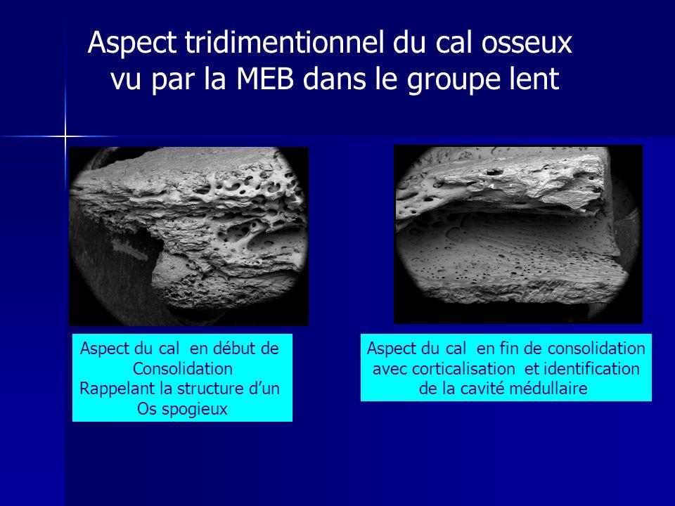 Aspect tridimentionnel du cal osseux vu par la MEB dans le groupe lent