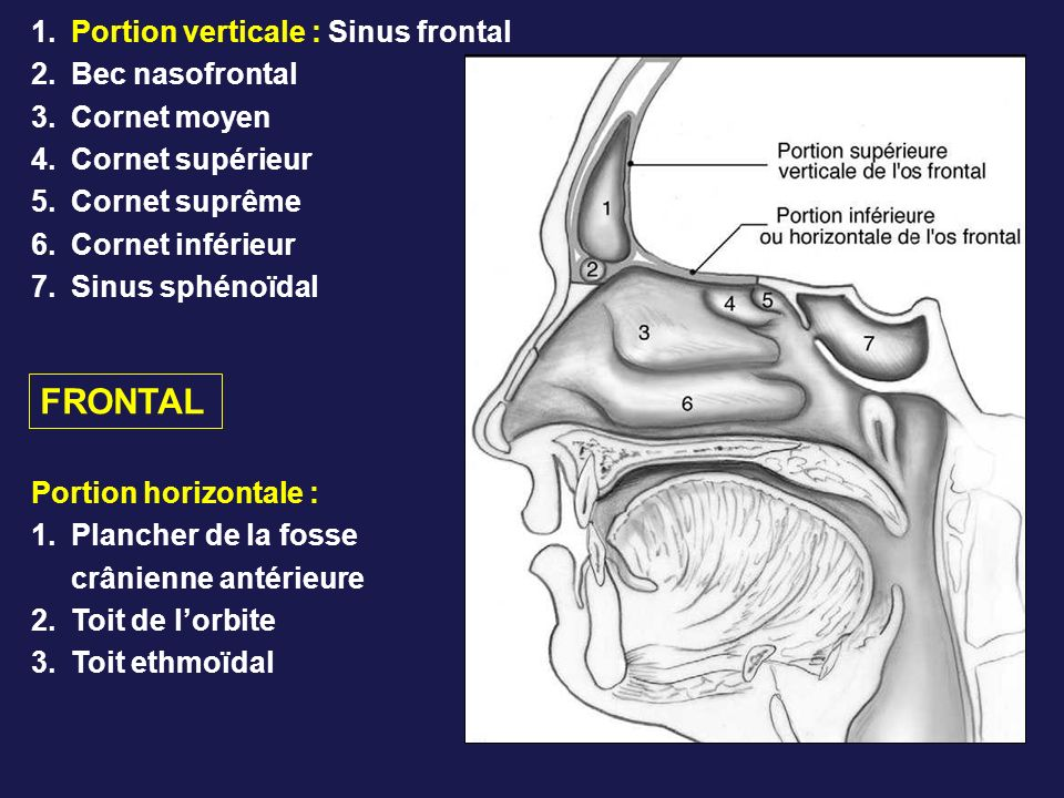 FRONTAL Portion verticale : Sinus frontal Bec nasofrontal Cornet moyen