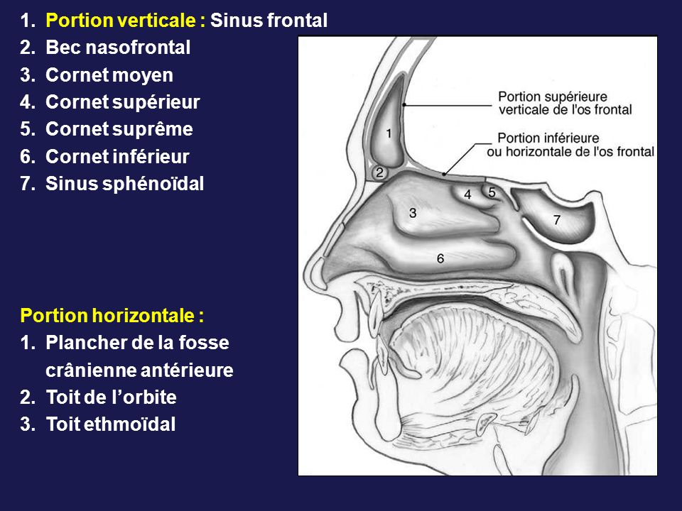Portion verticale : Sinus frontal