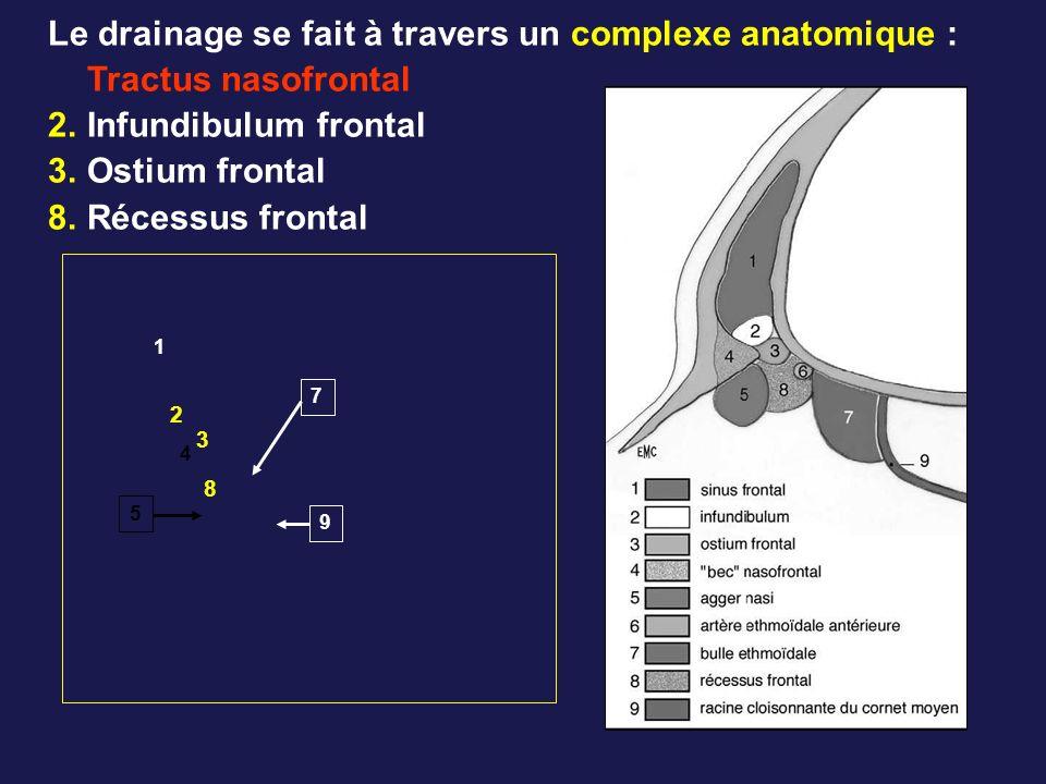 Le drainage se fait à travers un complexe anatomique : Tractus nasofrontal