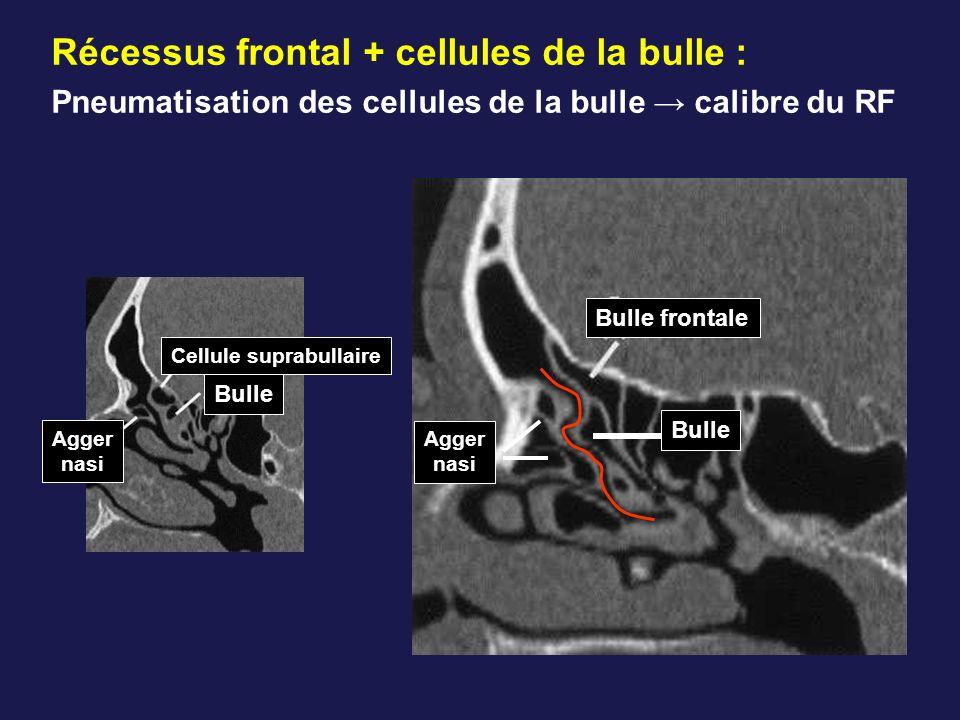 Récessus frontal + cellules de la bulle : Pneumatisation des cellules de la bulle → calibre du RF