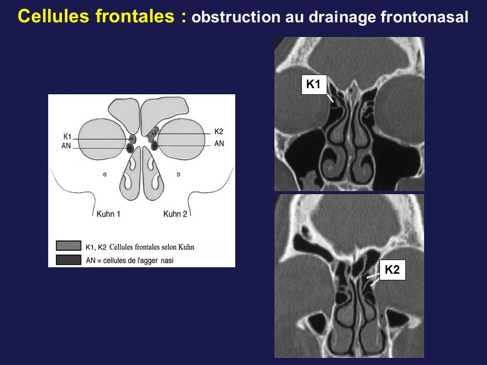 Cellules frontales : obstruction au drainage frontonasal