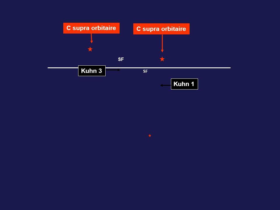 C supra orbitaire C supra orbitaire