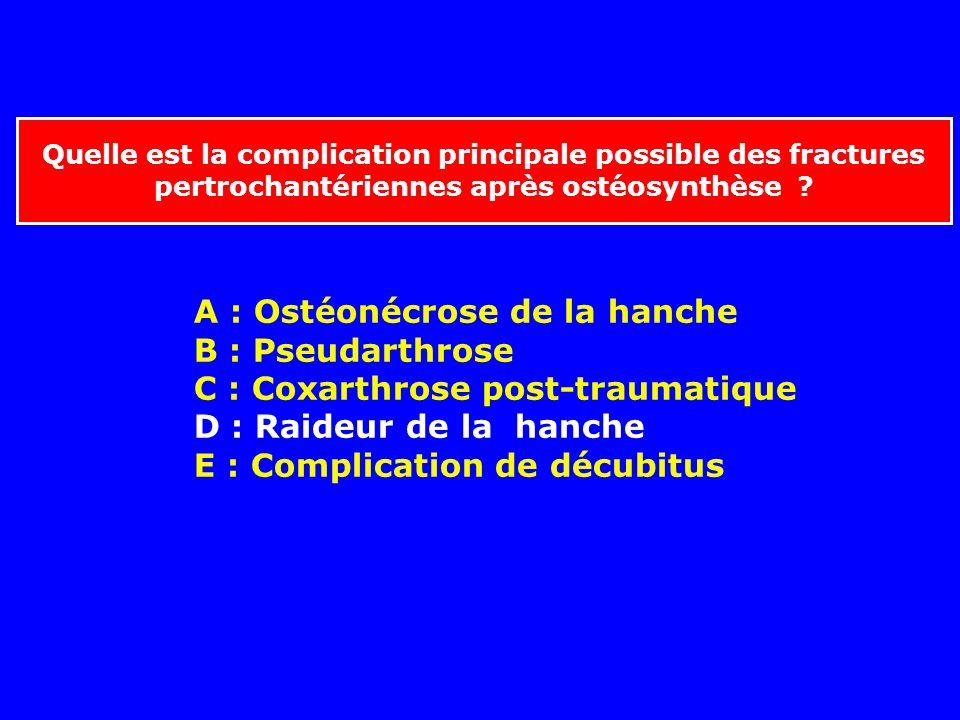 A : Ostéonécrose de la hanche B : Pseudarthrose