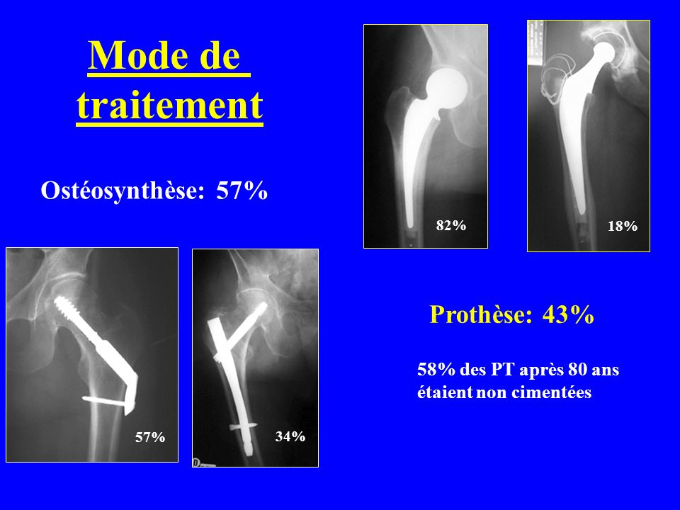 Mode de traitement Ostéosynthèse: 57% Prothèse: 43%