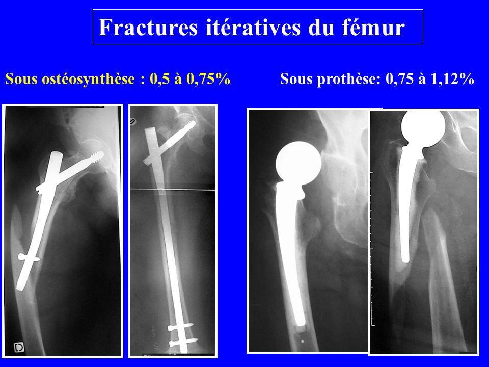 Fractures itératives du fémur