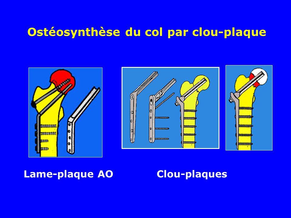 Ostéosynthèse du col par clou-plaque