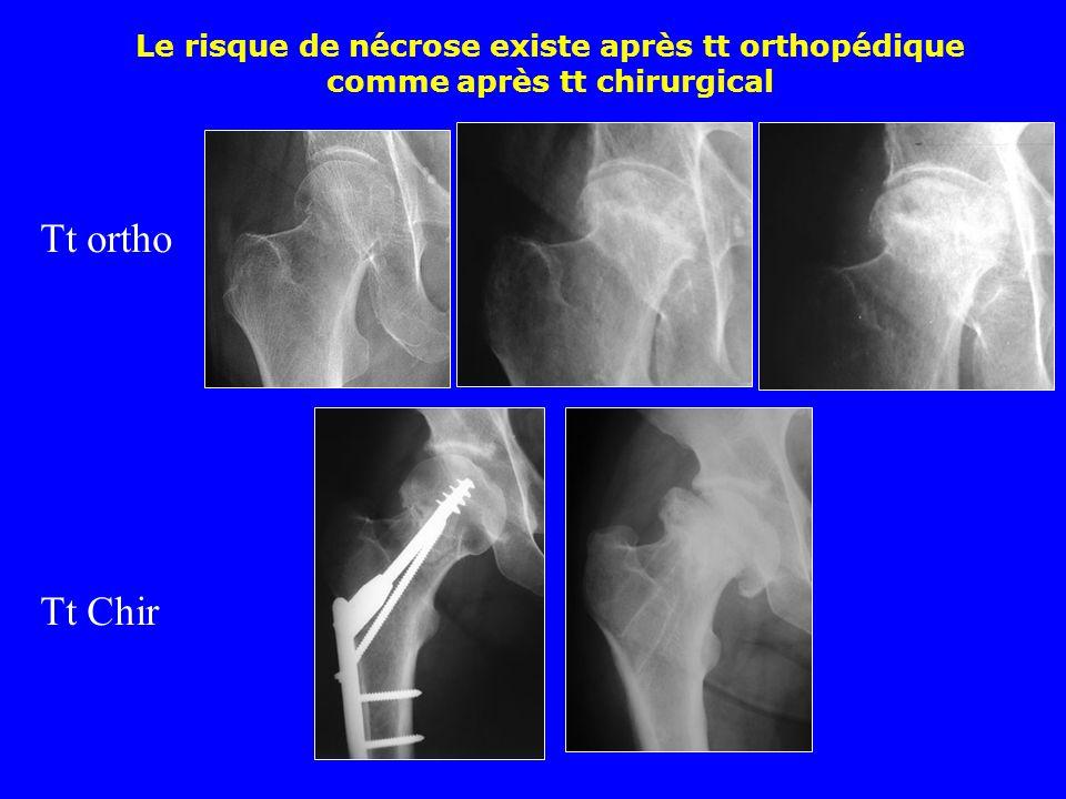 Le risque de nécrose existe après tt orthopédique comme après tt chirurgical
