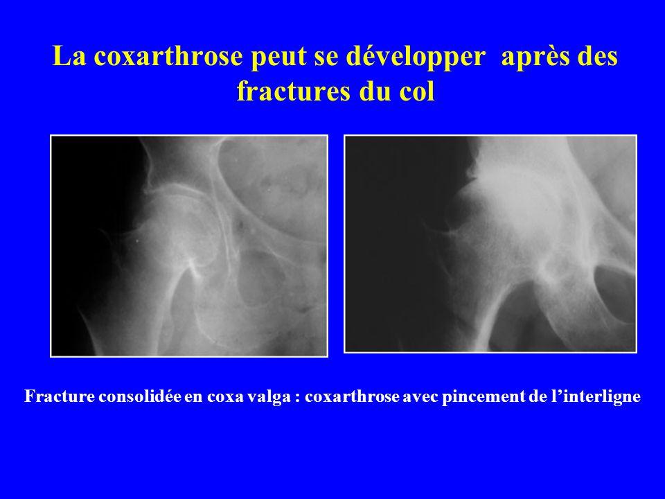 La coxarthrose peut se développer après des fractures du col