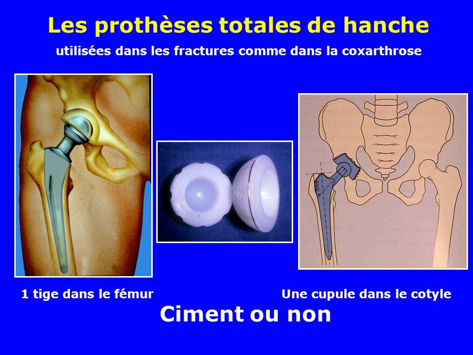 Les prothèses totales de hanche utilisées dans les fractures comme dans la coxarthrose