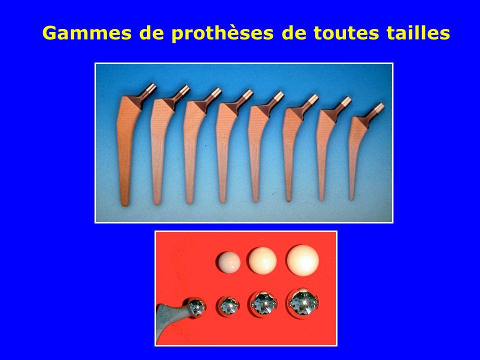 Gammes de prothèses de toutes tailles