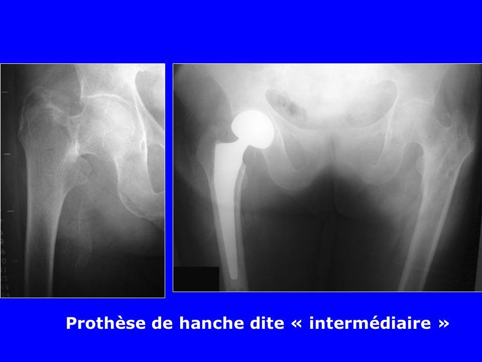 Prothèse de hanche dite « intermédiaire »