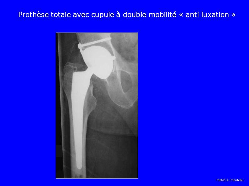 Prothèse totale avec cupule à double mobilité « anti luxation »
