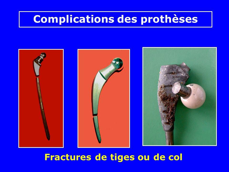 Fractures de tiges ou de col