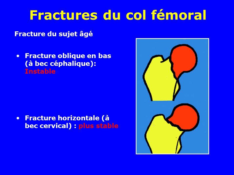 Fractures du col fémoral