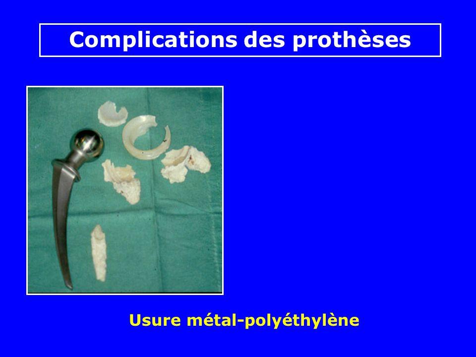 Usure métal-polyéthylène