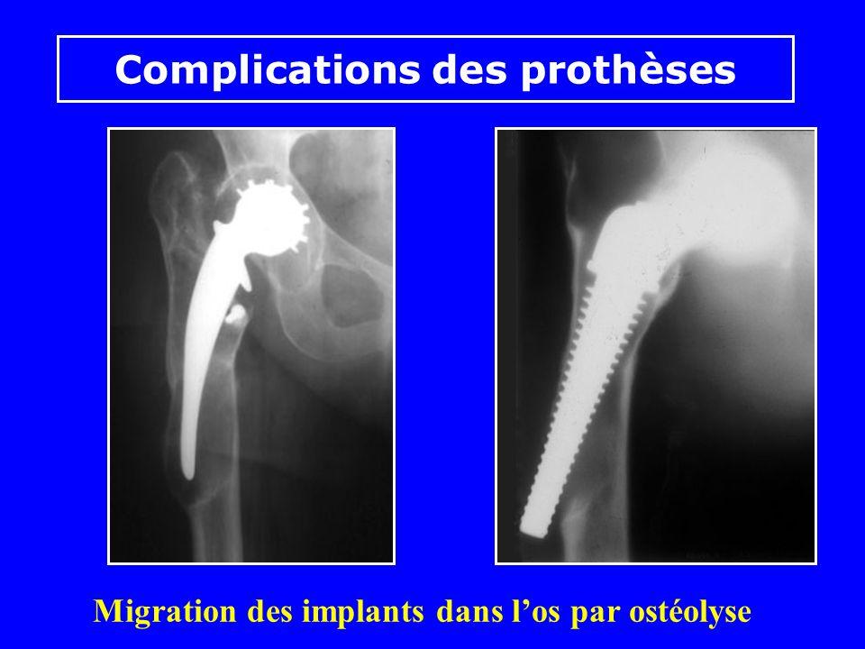 Migration des implants dans l'os par ostéolyse