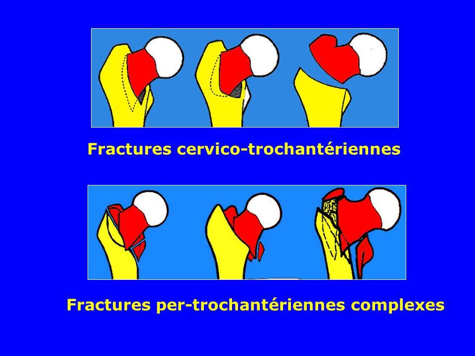Fractures cervico-trochantériennes