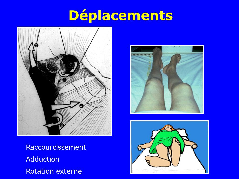 Déplacements Raccourcissement Adduction Rotation externe