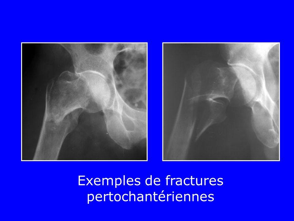 Exemples de fractures pertochantériennes