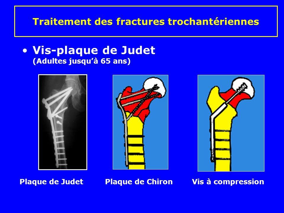 Traitement des fractures trochantériennes