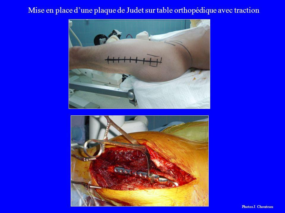 Mise en place d'une plaque de Judet sur table orthopédique avec traction