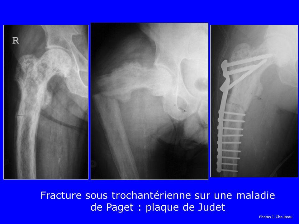 Fracture sous trochantérienne sur une maladie de Paget : plaque de Judet