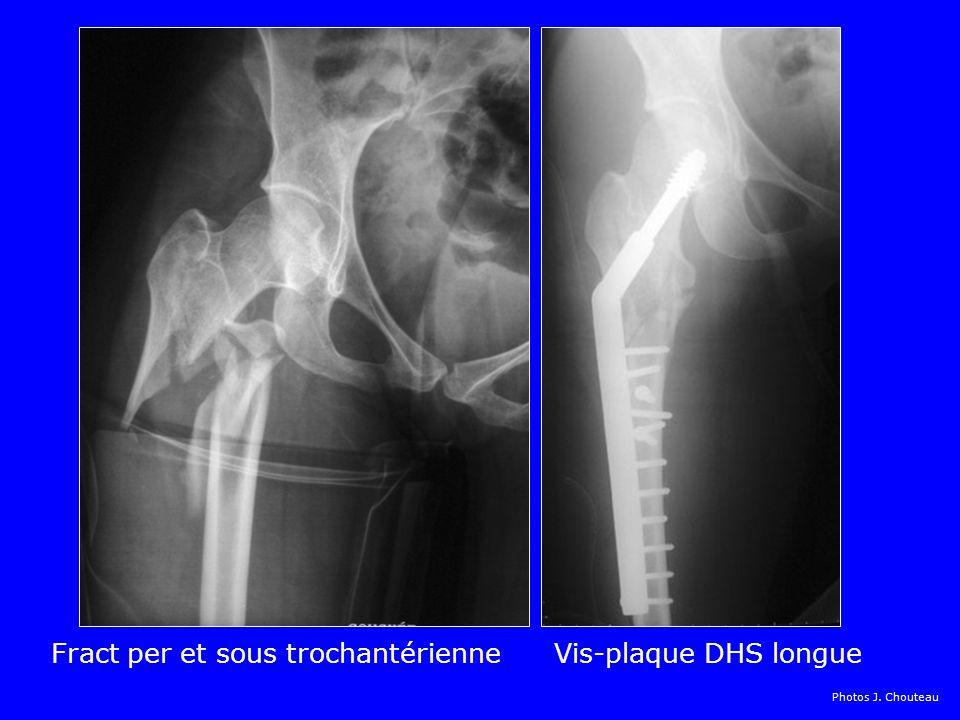Fract per et sous trochantérienne Vis-plaque DHS longue