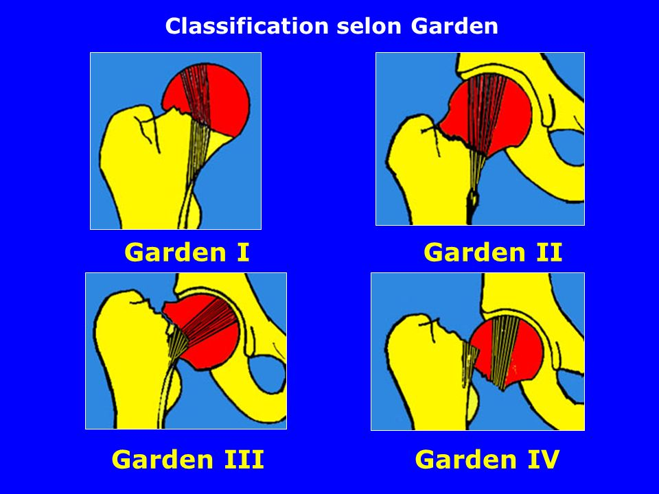 Classification selon Garden