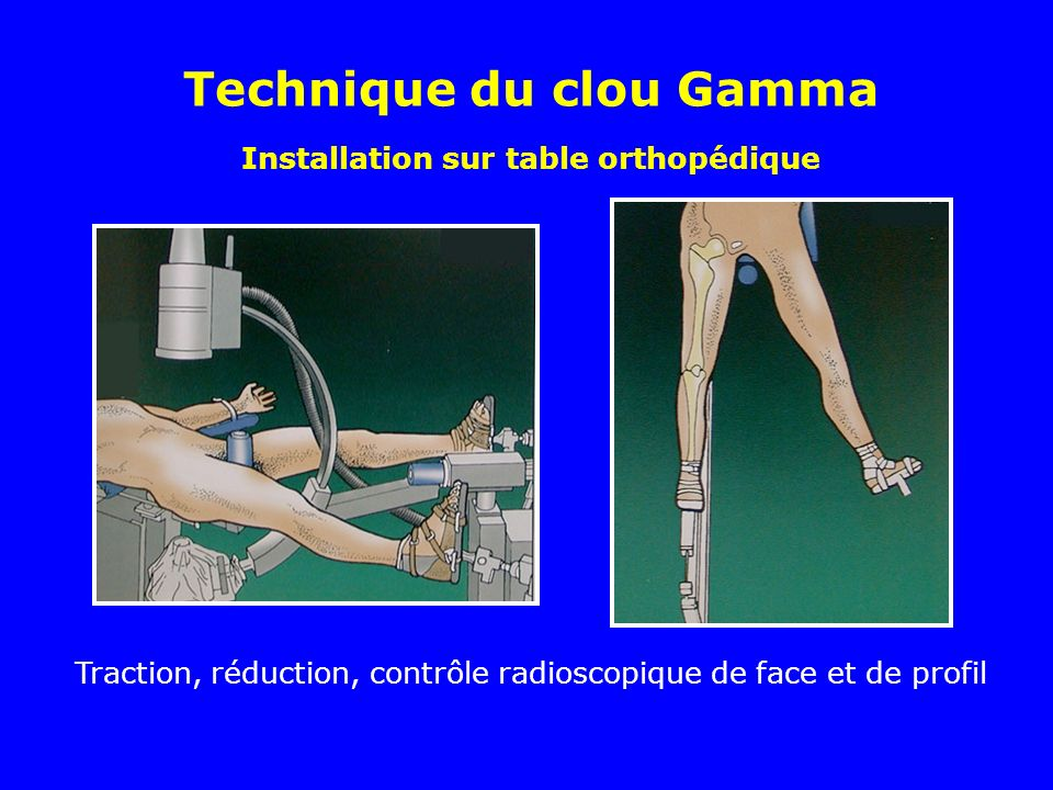 Installation sur table orthopédique